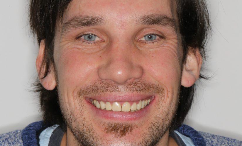 Slika 12: Grega z novim nasmehom z dolgotrajnimi provizoriji, ki potrebujejo še nekaj manjših popravkov.