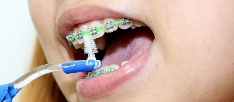 Ortodont higiena